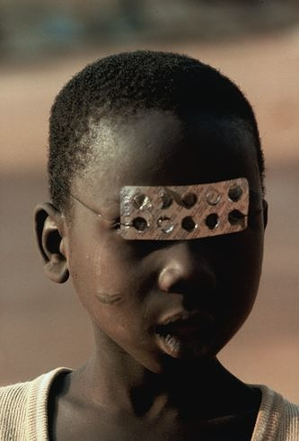Leonore Mau | Boy with Blister-Mask, 1974 | Abomey, Benin